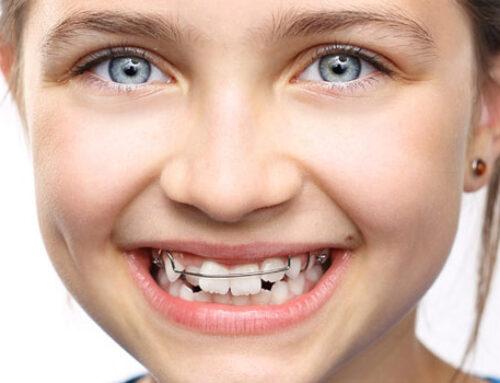 ¿Por qué es importante la visita al ortodoncista a los 4 años?