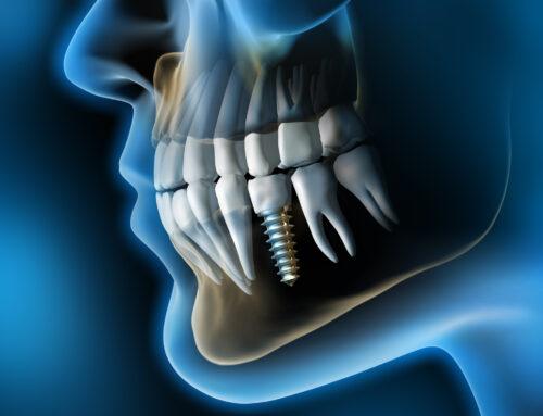 Las 5 ventajas de los Implantes Dentales que no conocías