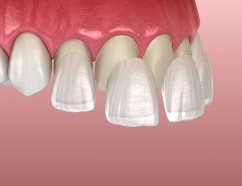 Tipos de carillas dentales para mejorar el aspecto de tu sonrisa