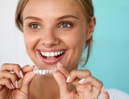 Ortodoncia Invisible: la solución más estética para tu sonrisa