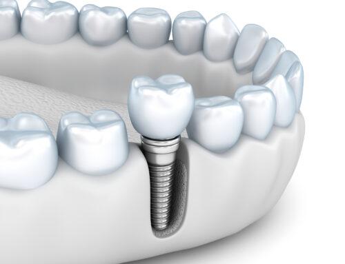 ¿Cuál es la duración de los implantes dentales?