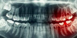 Daldent Endodoncia Dolor Dental