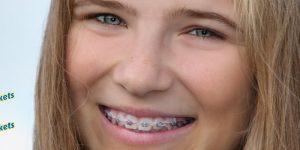 Daldent Oortodoncias Dentista Sanchinarro y Las Tablas