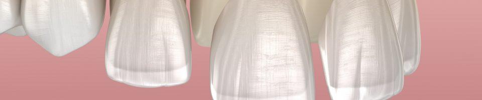 tipos de carillas dentales